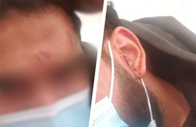 A UberEats driver was punched in the head while picking up an order